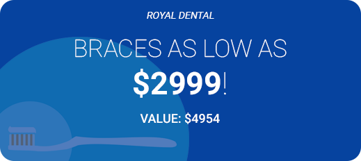 braces as low as 2999